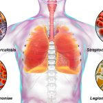 What Are the Methods of Legionnaires Disease Disinfections?